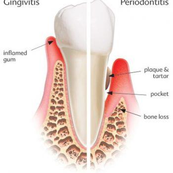 dentist tauranga