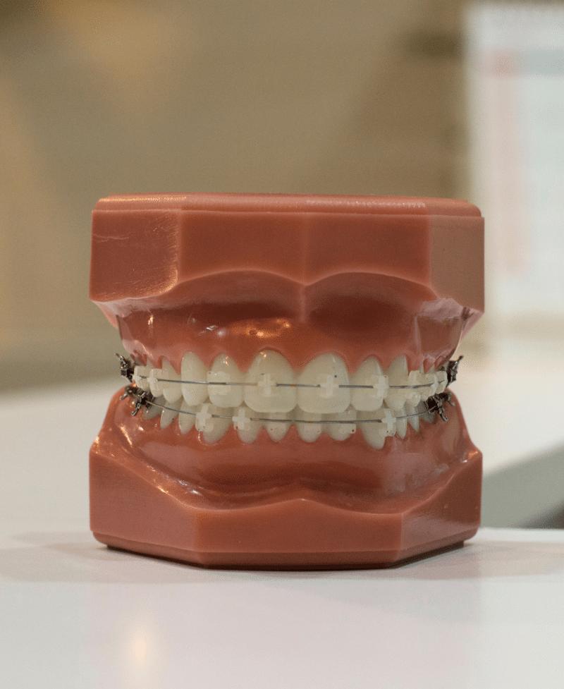 best dentist in tauranga